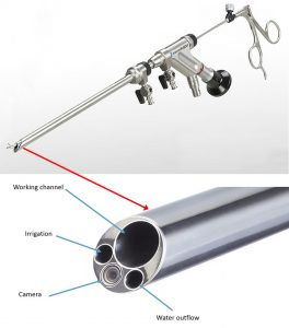 Instrument for performing spinal endoscopy. Above, at the top right, a thin surgical tool has been inserted into a narrow metal tube, exiting at the bottom left. Below, in a magnified view of the tip of the tube, the widest opening is the one through which the surgical tool emerges. Two other channels irrigate and the surgical area and drain the water. The tube also contains a micro-miniaturized camera and light source to show the surgeon what is happening in the surgical area.